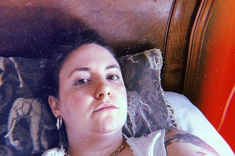 Lena Dunham cierpi na nieuleczalną chorobę. Aktorka opublikowała post, w którym zdradziła, że choruje na zespół Ehlersa-Danlosa