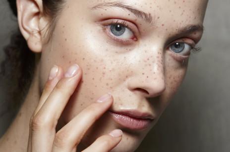 Te 3 składniki kosmetyczne rozjaśnią najbardziej oporne przebarwienia. Znajdziesz je w kremach i serach